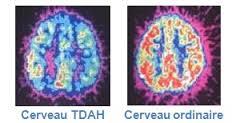 cerveau TDAH